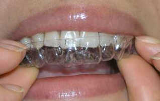 Straightening without Braces
