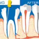 root canal treatment city dental