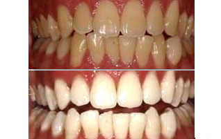 Teeth Whitening Cost Delhi India