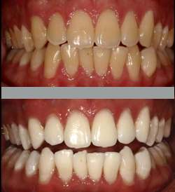 theeth whitening