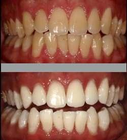 Teeth Whitening, City Dental Dwarka, Delhi