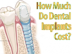 Cost of dental implant in Delhi