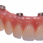 Implant supported Denture