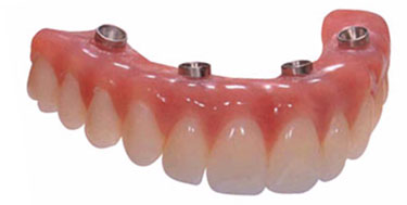 All on four implant denture in delhi